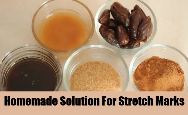 Homemade Solution For Stretch Marks