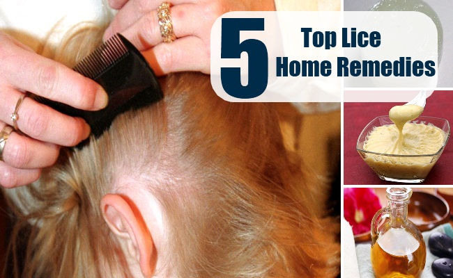 Lice Home Remedies