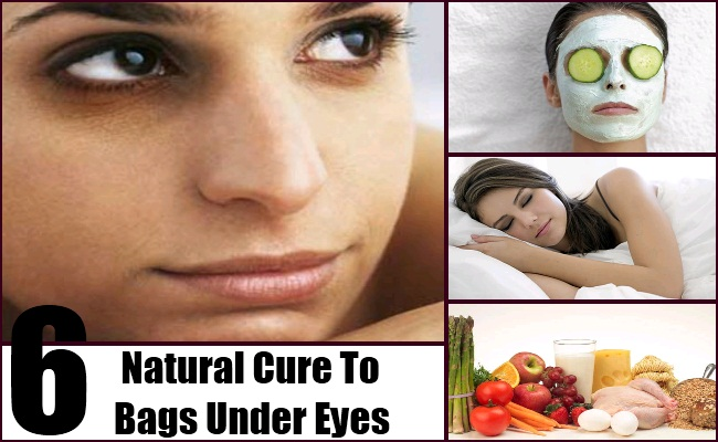 6 Natural Cure For Bags Under Eyes - How To Cures Bags Under