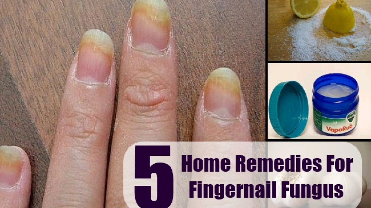 Fingernail Fungus Home Remedy - Natural Remedy, Treatments & Cure ...