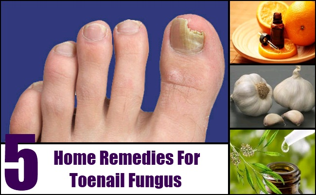 5 Tips On Home Remedy Toenail Fungus - Natural Treatments & Cure For ...
