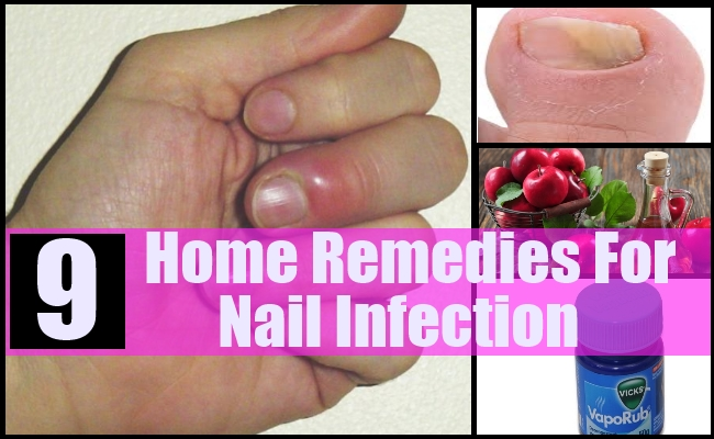 How to Treat an Infected Nail (Paronychia)