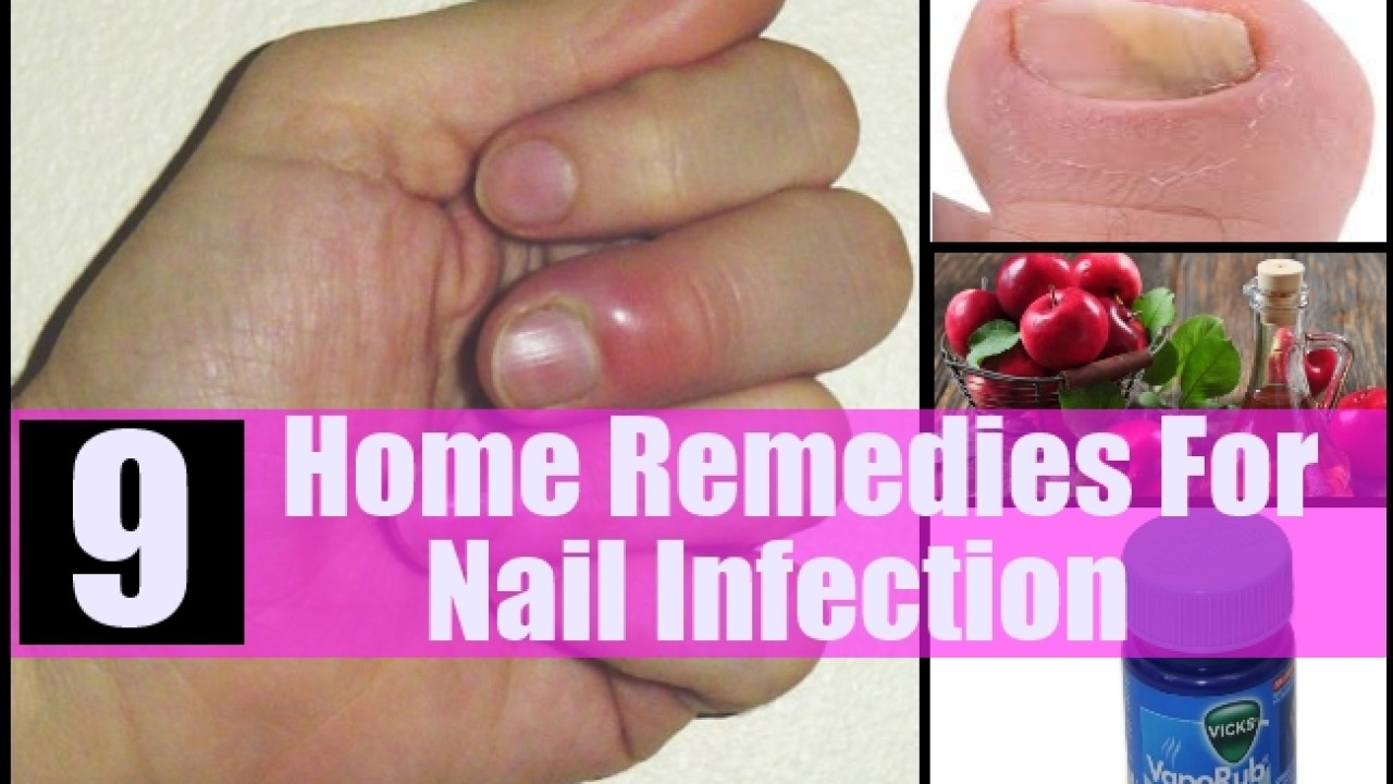 9 Home Remedies For Nail Infection - Natural Treatments & Cure For ...