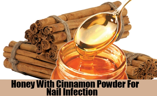 Honey With Cinnamon Powder For Nail Infection