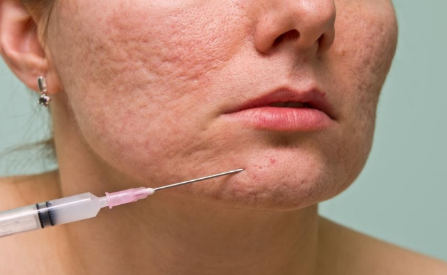 Lasers Work Better For Acne