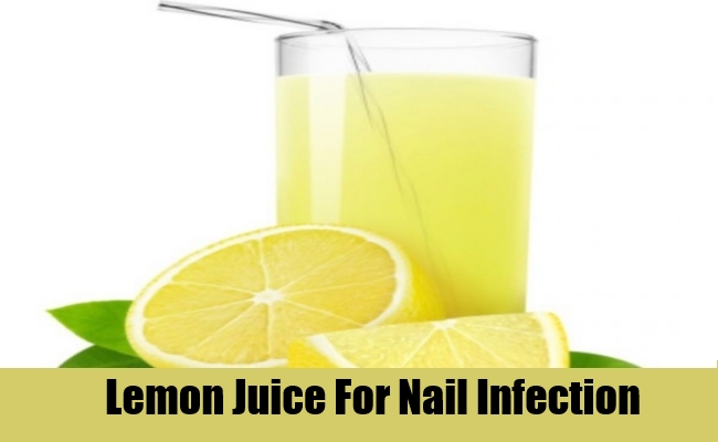 Lemon Juice For Nail Infection