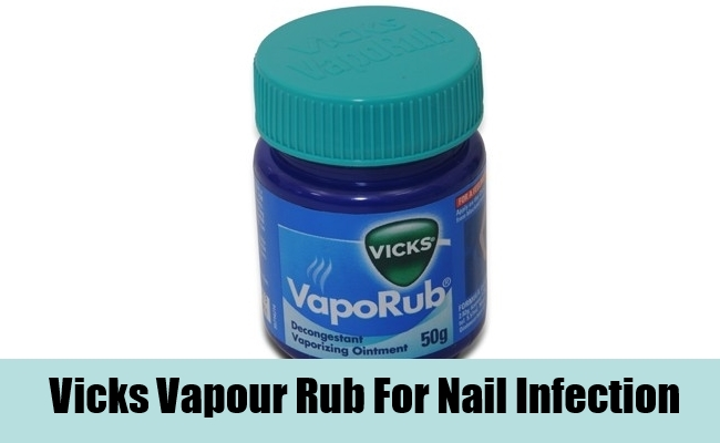 Vicks Vapour Rub For Nail Infection