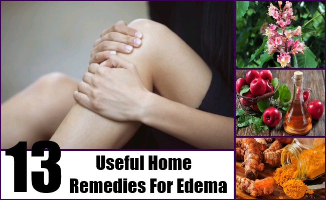 Home Remedies For Edema