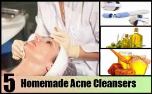 Homemade Acne Cleansers