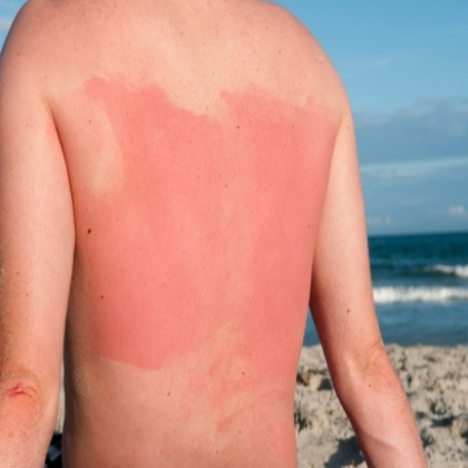 8 Home Remedies For Sun Poisoning
