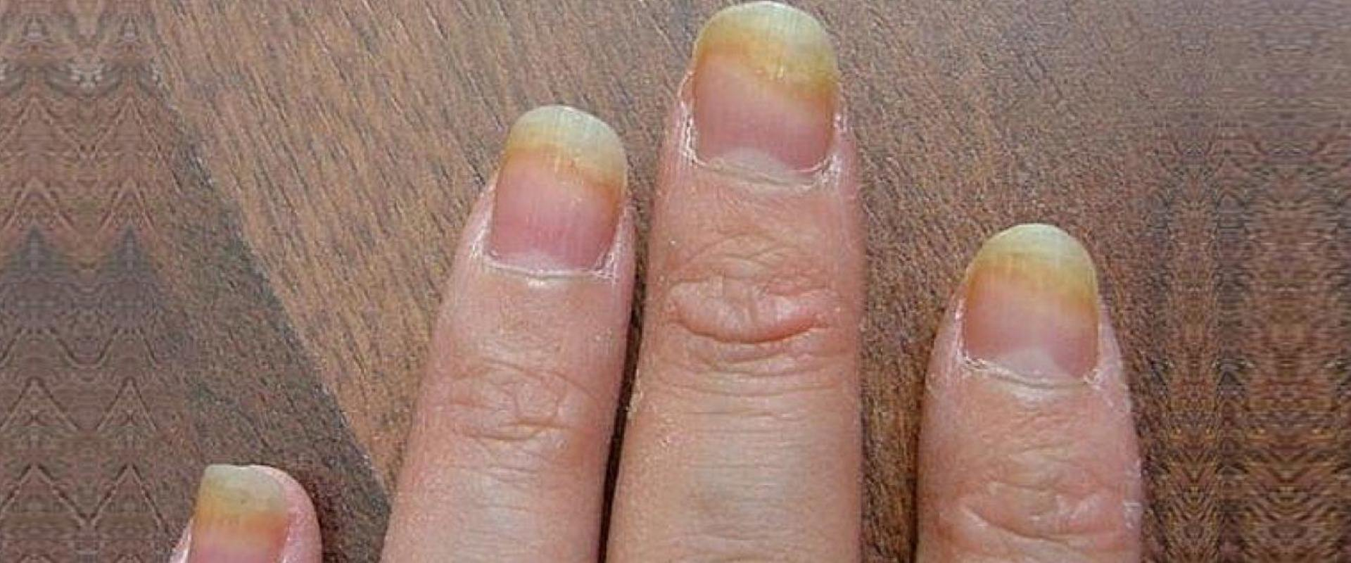 Nail Fungus Home Remedies, Natural Treatments And Cures | Lady Care ...