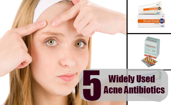 Acne Antibiotics
