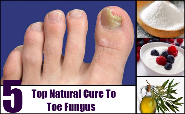 Top 5 Natural Cures For Toe Fungus | Lady Care Health