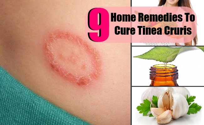 9 Top Home Remedies To Cure Tinea Cruris   Lady Care Health