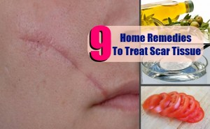 9 Top Home Remedies To Treat Scar Tissue