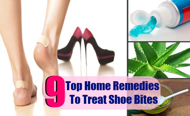 9caabac4ac Shoe bites are considered as quite common issue which occurs when we wear  new pair of shoes or slippers. This is one of the most common ugly sore  which ...