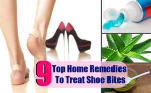 9 Top Home Remedies To Treat Shoe Bites