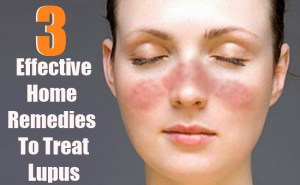 3 Effective Home Remedies To TreatLupus