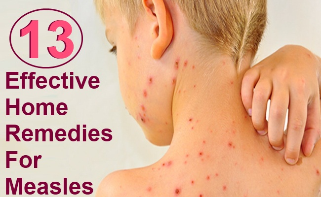 13 Effective Home Remedies For Measles