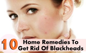Top 10 Home Remedies To Get Rid Of Blackheads