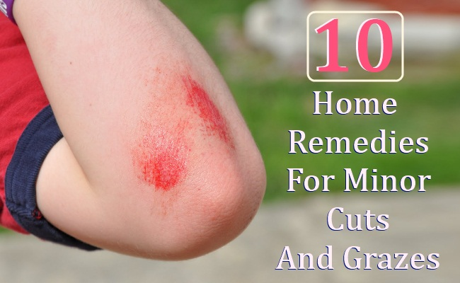 10 Home Remedies For Minor Cuts And Grazes