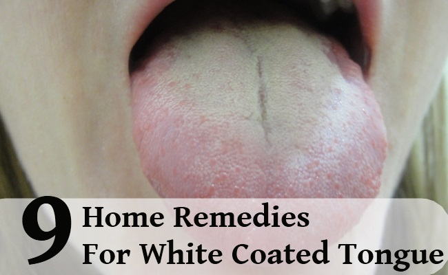 Natural Home Remedies For White Tongue