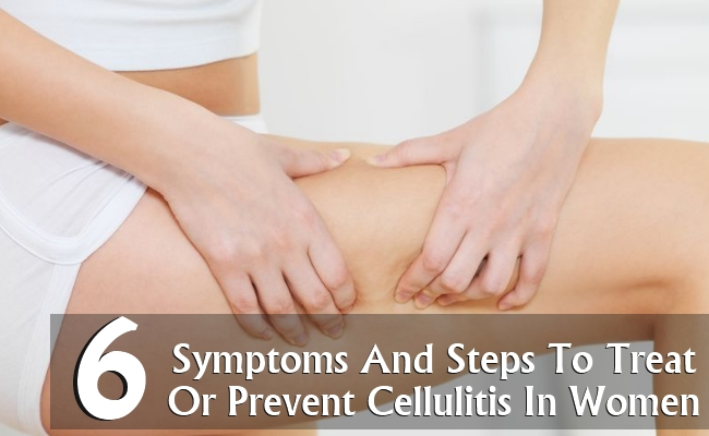 6 Symptoms And Steps To Treat Or Prevent Cellulitis In Women