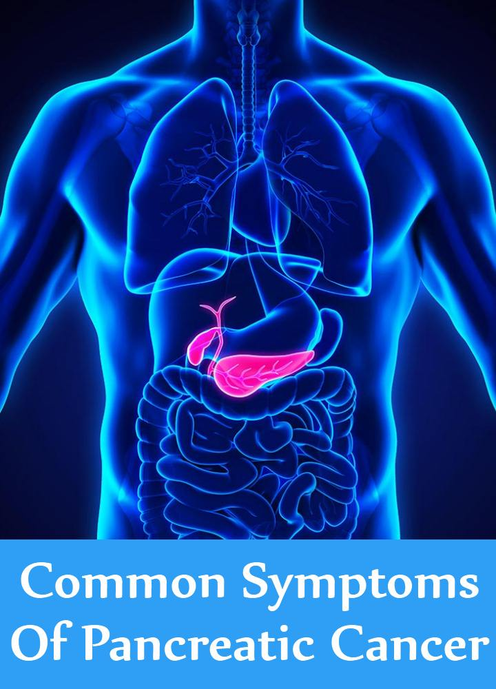 Common Symptoms Of Pancreatic Cancer