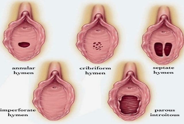 8 Symptoms And Medical Solutions For Imperforate Hymen -3939
