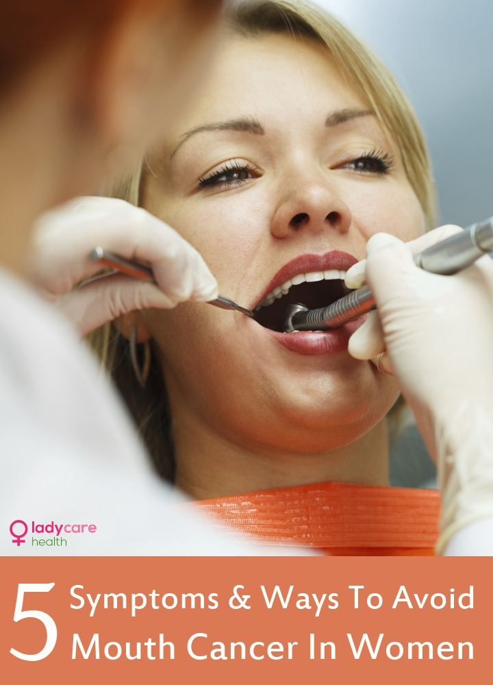 Mouth Cancer In Women