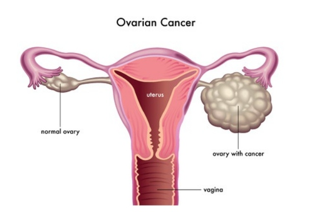 Cancer In Ovaries