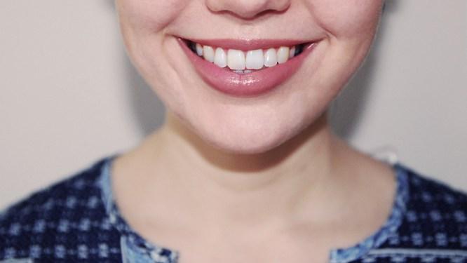 Pop Smile Review - Teeth Whitening Kit (10)