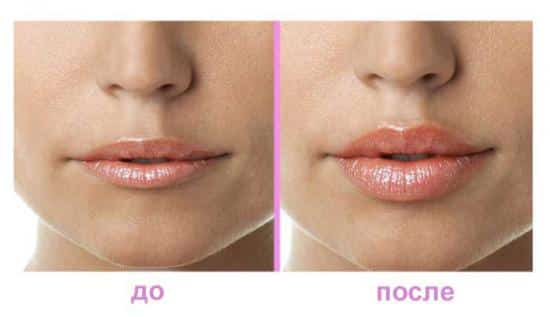Филлеры в губы: отзывы, фото, техника введения