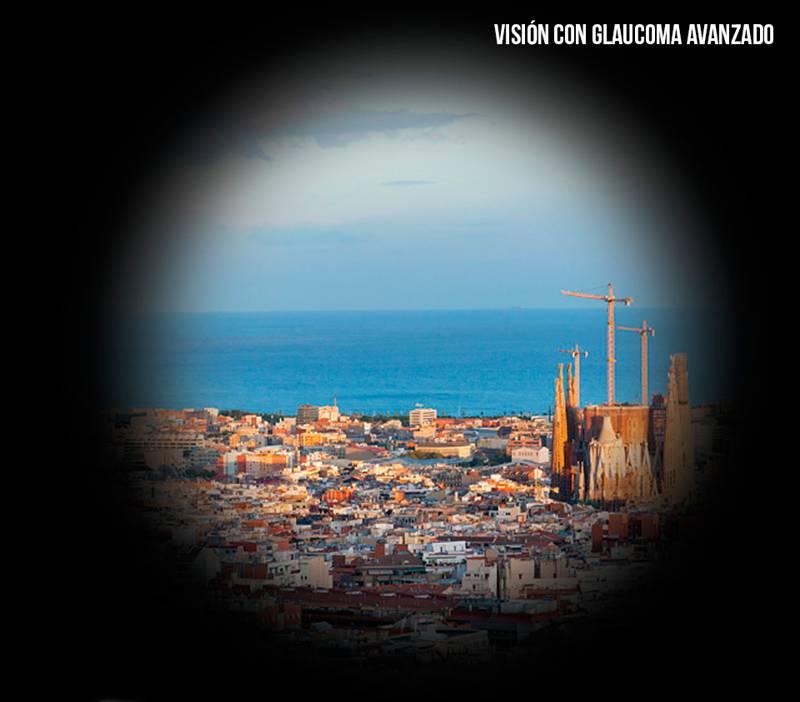 El glaucoma la enfermedad silenciosa - portada