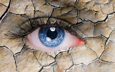 La ola de calor afecta a tus ojos