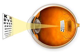 definicion de miopia