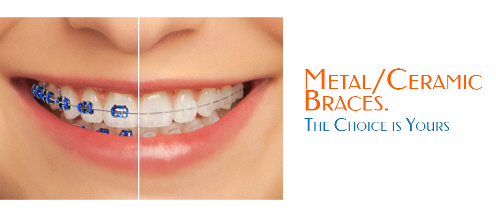 Jenis Jenis Behel Gigi- Global Estetik Dental Care