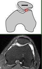 painful knee cap