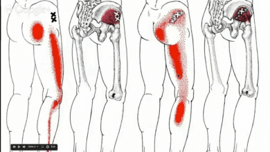 hip-muscle-trigger-points