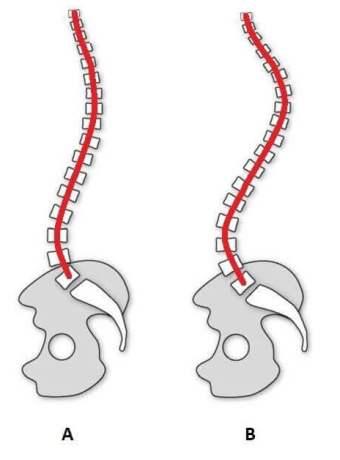 upperback-neck-curvatures