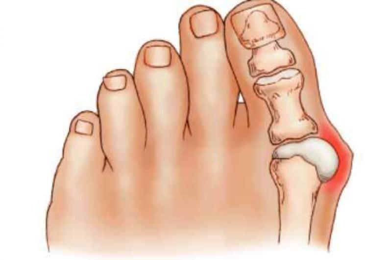 Dolor en la parte delantera de la planta del pie