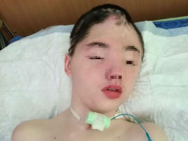 Vanya Krapivin tras el accidente (Foto: VK/EAST12WESTNEW)