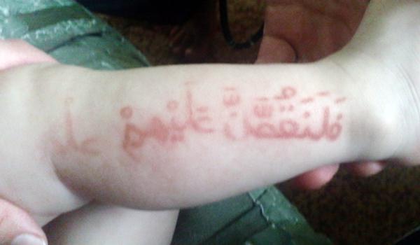 Los versos del Corán que aparecen sobre la piel del bebé