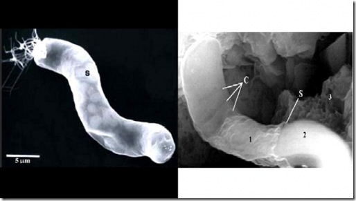 actual bacterium