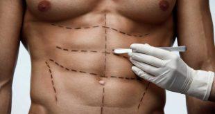 Liposucción masculina: qué es, tipos y lipoesculturas más solicitadas