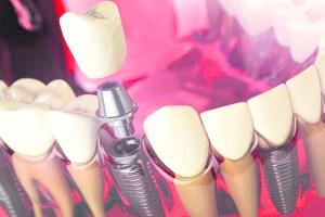 Rehabilitación oral, más allá de la estética 8 14 julio, 2020