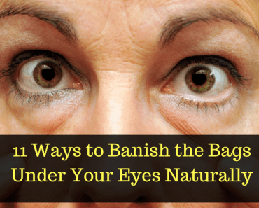 Eyes Bags