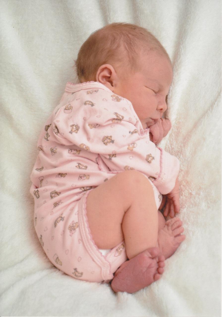 Breech Baby Health Problems
