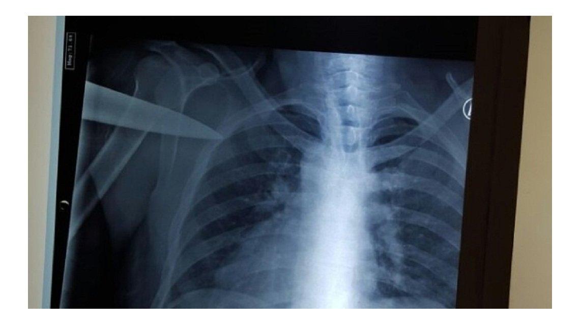 Hombre con cuchillo clavado en la espalda, sale de hospital a fumar