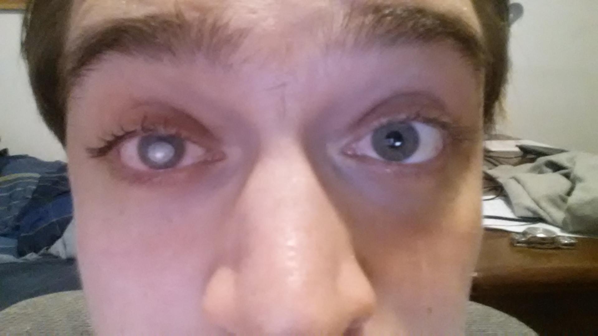Se baña con lentes de contacto y queda ciego